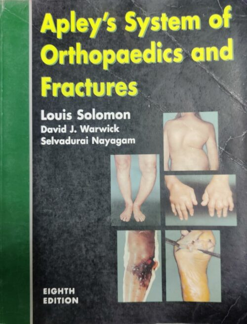 ApleyS System Of Orthopaedics And Fractures